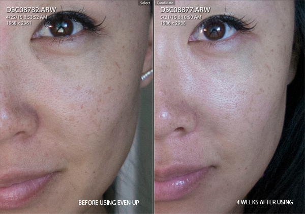 colorescience-before-after-even-up